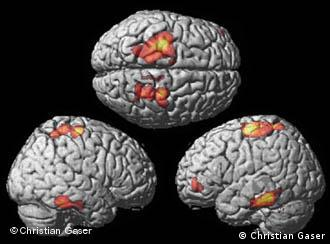 As diferenças entre os cérebros de músicos profissionais, de músicos amadores e de não-músicos