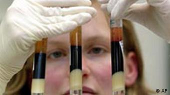 AIDS-Impfstoff wird in Deutschland getestet