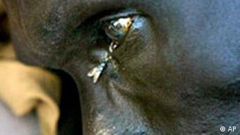 Tuberkulose Patient in Sudan