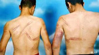 Folter Israel geschlagene Palästinenser