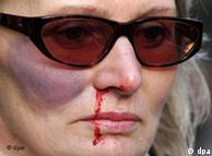 Διαδήλωση κατά τη βίας σε βάρος των γυναικών
