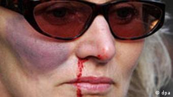 Internationaler Tag gegen Gewalt an Frauen
