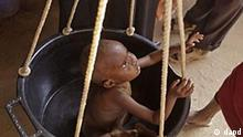 Kenia Dürre in Ostafrika Flüchtlingslager in Dadaab Kind