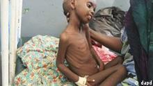 Somalia Hungersnot Lager Flüchtlingslager Kind