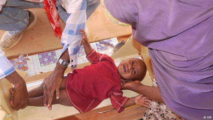 An infant being examined at the Dolo Ado refugee camp in Ethiopia
