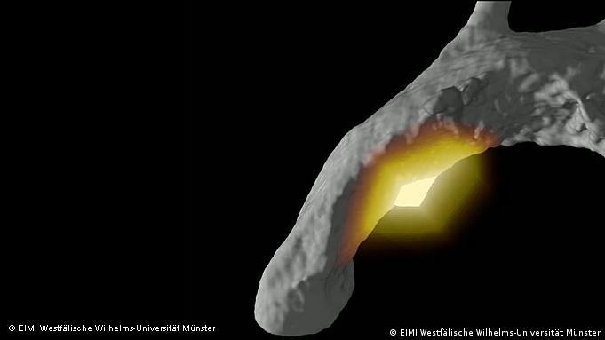 Томограма мишачої аорти з запаленням