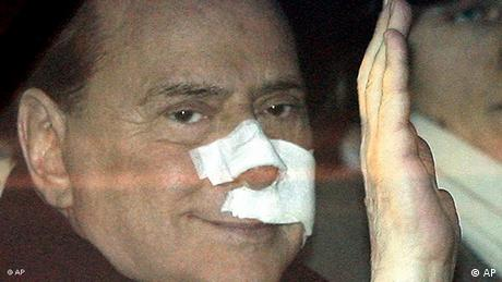 Silvio Berlusconi with bandages on his face, waving (AP)