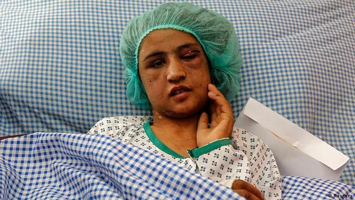 Sahar Gul im Krankenhausbett (Foto: Reuters)