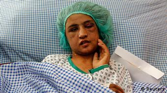 Sahar Gul, 15, lies on a hospital bed after being brutally tortured, beaten and locked in a toilet by her husband's family for months after she refused to become a prostitute. Photo: REUTERS/Omar Sobhani