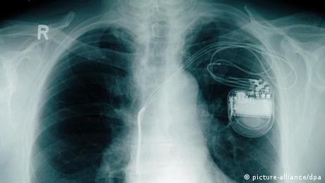 القلب الجهاز النابض العجيب 0,,15642924_302,00.j