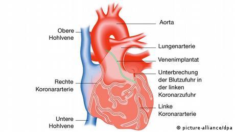 القلب الجهاز النابض العجيب 0,,15642941_302,00.j