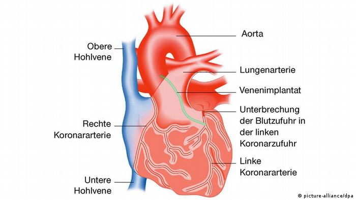 Grafik des menschlichen Herzens