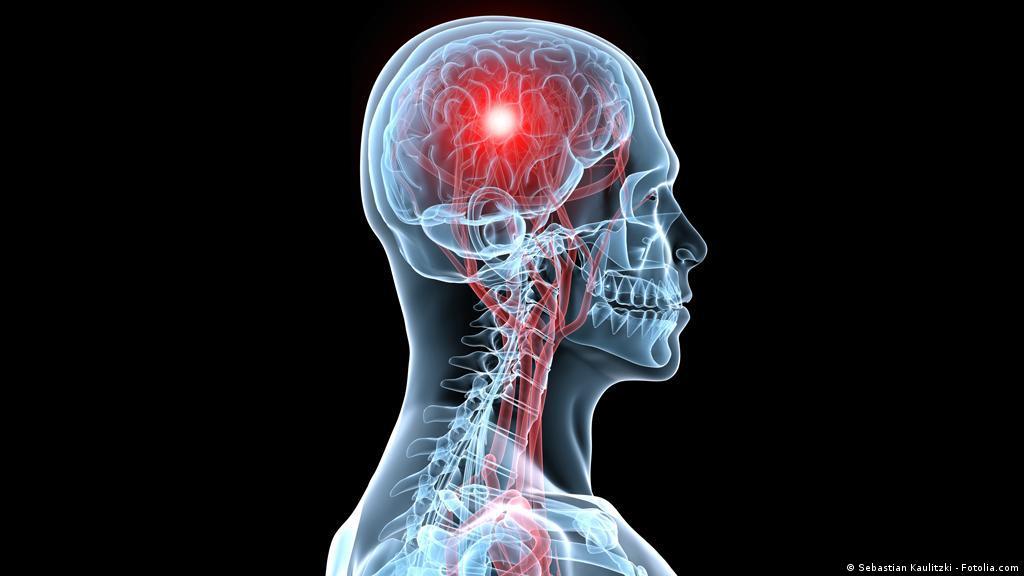 عندما يتعرض الجسم لجلطة دماغية علوم وتكنولوجيا آخر الاكتشافات والدراسات من Dw عربية Dw 24 09 2013