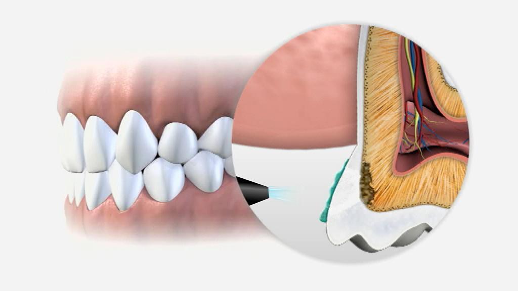 التهاب جذور الأسنان وعلاجه في ألمانيا علوم وتكنولوجيا آخر الاكتشافات والدراسات من Dw عربية Dw 28 09 2013