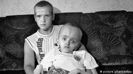 Tschernobyl Unglück Behinderte Kinder
