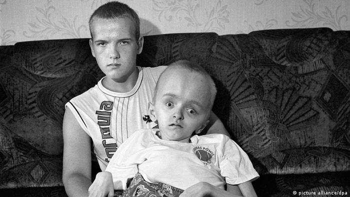 Tschernobyl Unglück Behinderte Kinder (picture alliance/dpa)