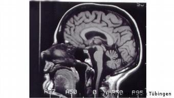 МРТ дає можливість подивтися на мозок у розрізі