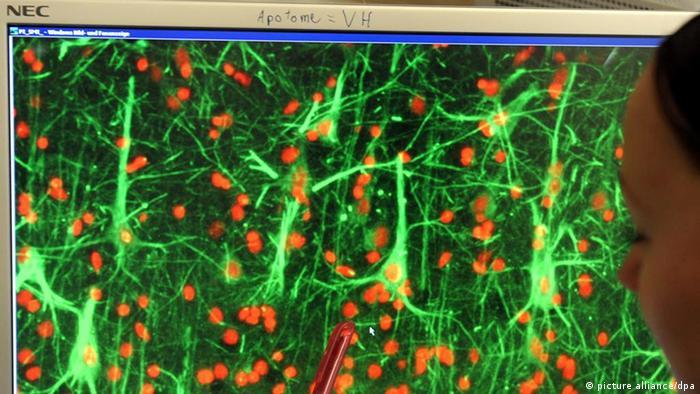 Stanice mozga pod povećalom