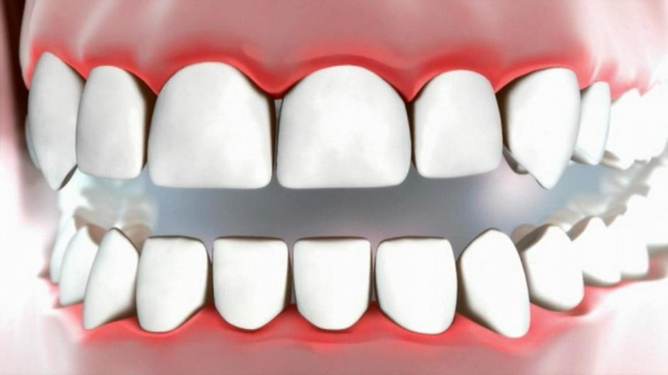 mundprobleme oder ernste erkrankung welche folgen kann parodontitis haben alle multimedialen. Black Bedroom Furniture Sets. Home Design Ideas