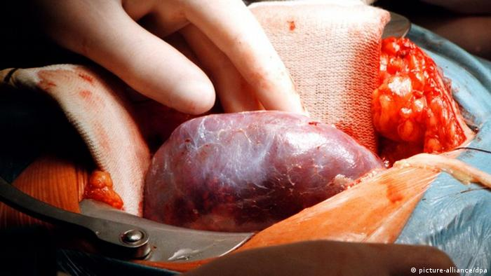 Organtransplantation in Jena