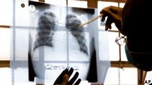A doctor examines chest X-rays at a tuberculosis clinic in Gugulethu, Cape Town, South Africa, Friday, Nov. 9, 2007. South Africa reported 343,000 TB cases in 2006, of which an estimated 6,000 were multi-drug-resistant. The government says that there have been about 400 cases of XDR-TB (extremely-drug-resistant tuberculosis), but groups like Medecins Sans Frontieres say this is a big underestimate. (ddp images/AP Photo/Karin Schermbrucker)