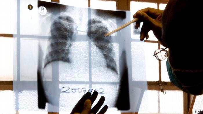A doctor examines chest X-rays Photo: ddp images/AP Photo/Karin Schermbrucker
