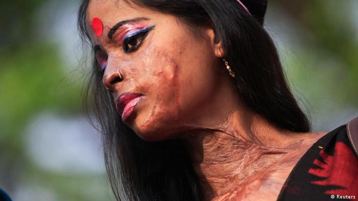 Hasina, a survivor of an acid attack, takes part in an awareness rally about the violence against women as they mark International Women's Day in Dhaka March 8, 2012. REUTERS/Andrew Biraj (BANGLADESH - Tags: SOCIETY ANNIVERSARY)