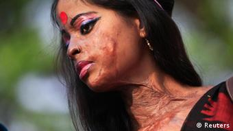 This woman in Bangladesh, whose face and neck are scarred from an acid attack, took part in a 2012 awareness rally about violence against women Copyright: REUTERS/Andrew Biraj