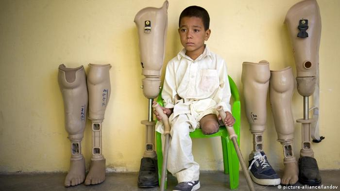 An Afghan child with only one leg sits next to artificial legs