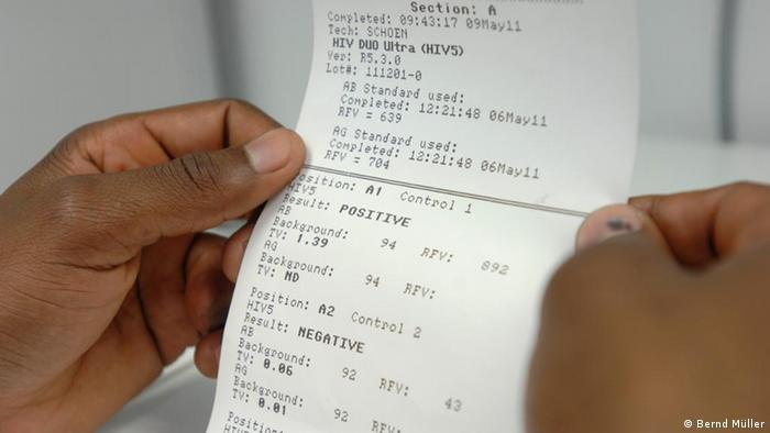 HIV test result Photo: Bernd Müller