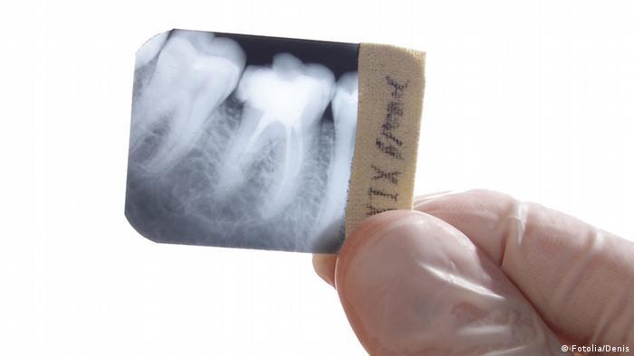 Röntgenbild von einem Zahn (Foto: Fotolia/Denis).