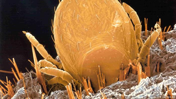 Microscopic image of a tick in skin (zecken.de)