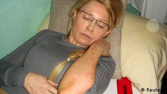 Former Ukrainian Prime Minister Yulia Tymoshenko shows what she claims is an injury in the Kachanivska prison in Kharkiv, in this undated handout picture received by Reuters on April 27, 2012.