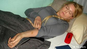 Former Ukrainian Prime Minister Yulia Tymoshenko shows what she claims is an injury in the Kachanivska prison in Kharkiv,