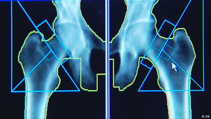26.05.2012 Fit und Gesund Bild 02 Vitamin D