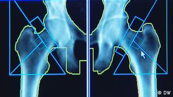 26.05.2012 Fit und Gesund Bild 02 Vitamin D (DW)