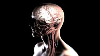 فشار خون بالا میتواند باعث سکته مغزی یا قلبی شود