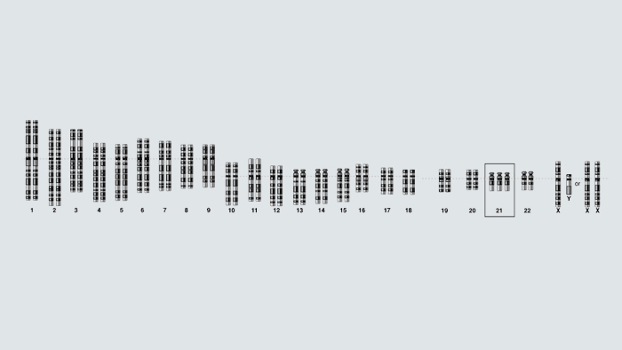 genome of a person with Down syndrome