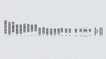 Infografik Trisomie 21 Genom