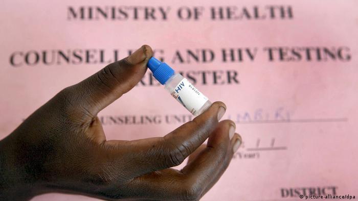 Bildergalerie Geschichte von HIV/AIDS