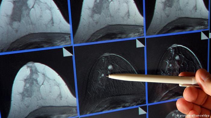 Krebs Früherkennung