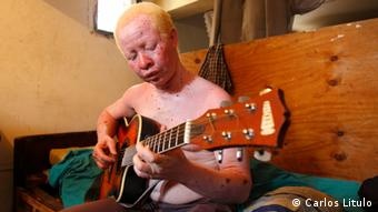 Ali Faque Albino-Musiker in Mosambik