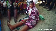 Ein Mädchen mit Filariasis