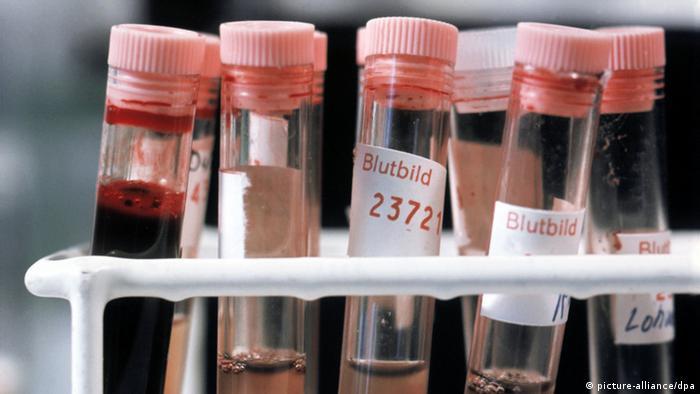 Blutprobe in Reagensglas