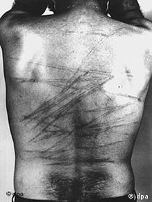 Rücken eines Mannes von Hinten. Darauf sind Striemen von Schlägen zu sehen. (Bild: dpa)