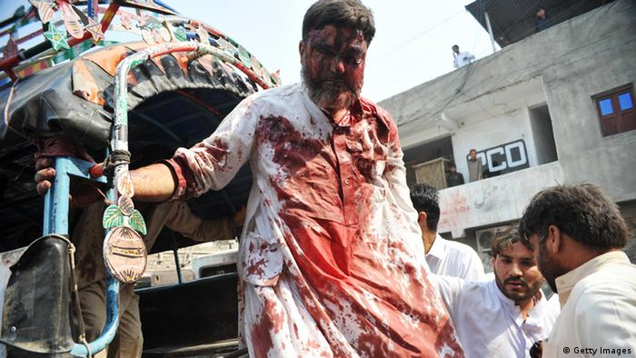 A Pakistani injured blast victim arrives at a hospital following a suicide bomb attack in Peshawar on October 13, 2012. AHMED/AFP/GettyImages