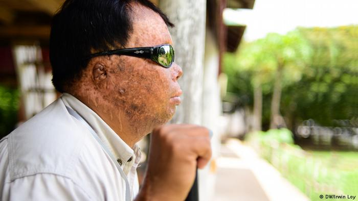 Som Bunnarith sits near his home at a refuge for acid attack survivors on the outskirts of Phnom Penh, Cambodia Copyright: Irwin Loy / DW