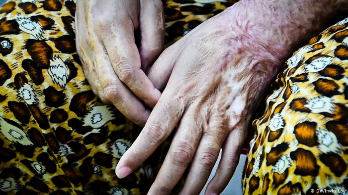 A woman shows scarring on her hands. She was injured after she was doused with acid in the 1990s. Copyright: Irwin Loy / DW