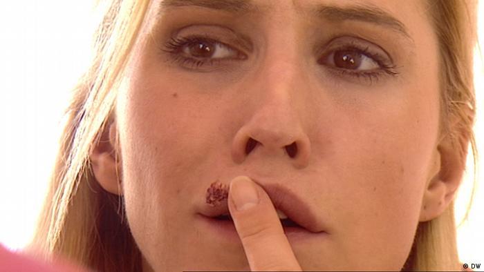 17.10.2012 DW Fit und Gesund Lippenherpes