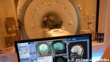 [33389259] Bilder des Gehirns verraten Alter des Menschen ARCHIV - Ein Laborant sitzt in der Uniklinik Großhadern in München vor einem Bildschirm mit Aufnahmen eines MRT vom Gehirn des Probanden, der im Hintergrund im MRT-Gerät liegt (Foto vom 27.11.2011). Bilder des Gehirns werden künftig ausreichen, um das Alter einer Person exakt festzustellen. Das berichten amerikanische Forscher der University of California (San Diego) im Wissenschaftsmagazin «Current Biology». Das Team um Timothy Brown nutzte dazu neue Aufnahmetechniken und Computerprogramme, die Daten von Bildern aus dem Kernspintomographen auswerten und so zumindest das Alter junger Menschen verraten. Foto: Andreas Gebert dpa (zu dpa-Meldung vom 16.08.2012) +++(c) dpa - Bildfunk+++